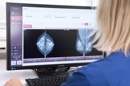 Valokuva, jossa tutkitaan tietokoneen näytöltä mammografiakuvia.