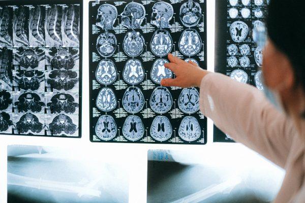 Onnistuneesti takaisin töihin aivoverenkiertohäiriön jälkeen